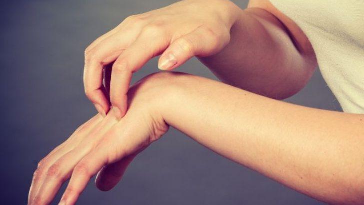Vücudun Herhangi Bir Alerjik Maddeye Karşı Gösterdiği Reaksiyonlar: Anaflaksi